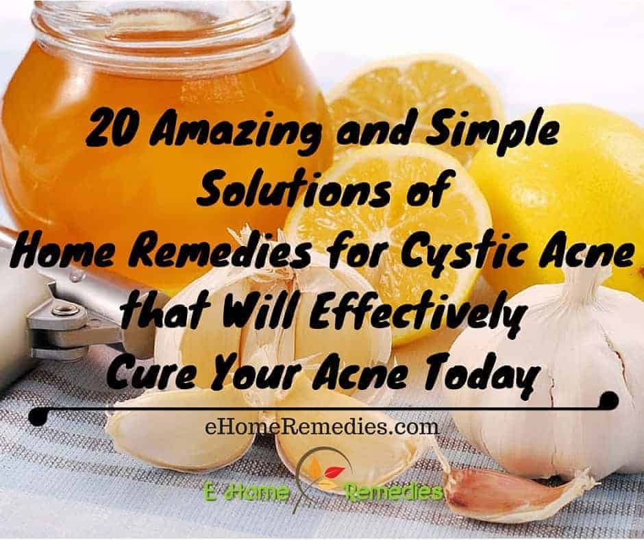 20 Amazing and Simple Solutions of Home Remedies for Cystic Acne that Will Effectively Cure Your Acne Today