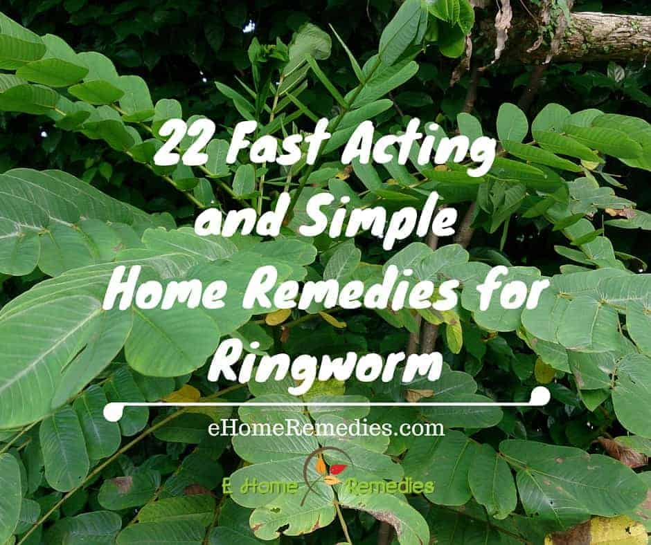 22 Fast Acting and Simple Home Remedies for Ringworm