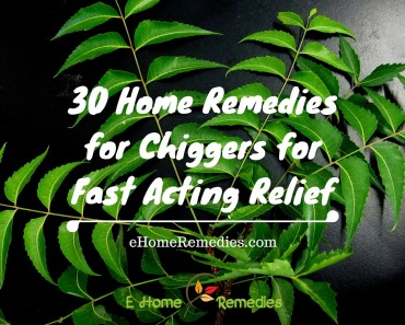 30 Home Remedies for Chiggers for Fast Acting Relief