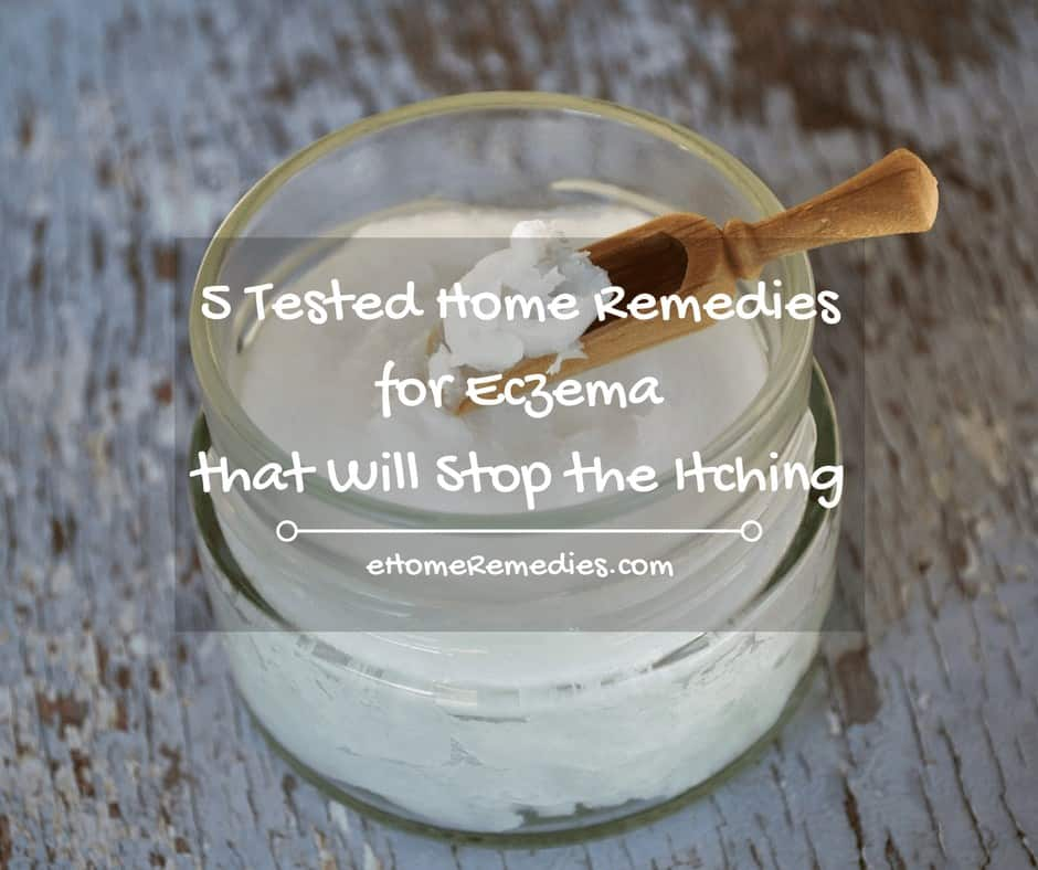 5 Tested Home Remedies for Eczema that Will Stop the Itching