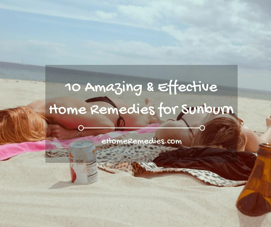 10 Amazing & Effective Home Remedies for Sunburn