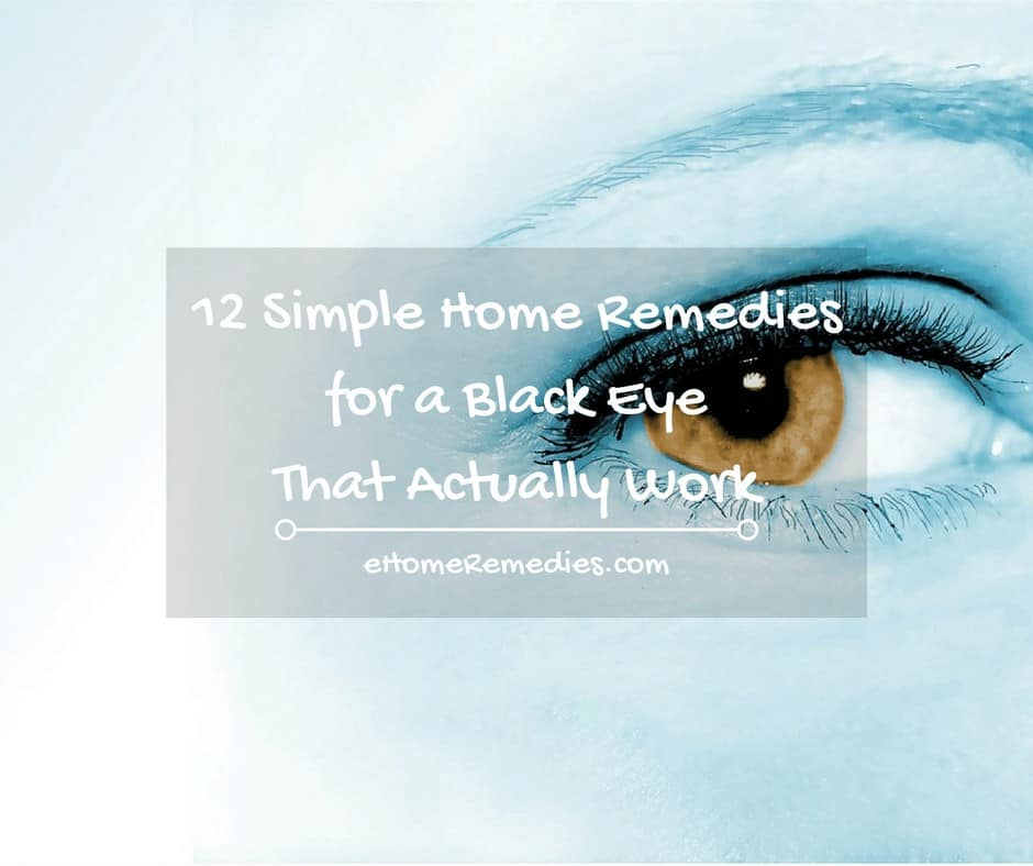 12 Simple Home Remedies for a Black Eye That Actually Work