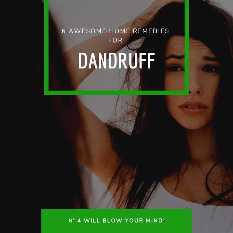 6 Awesome Home Remedies For Dandruff