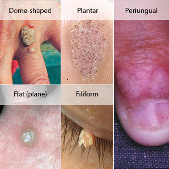 Signs and symptoms of warts
