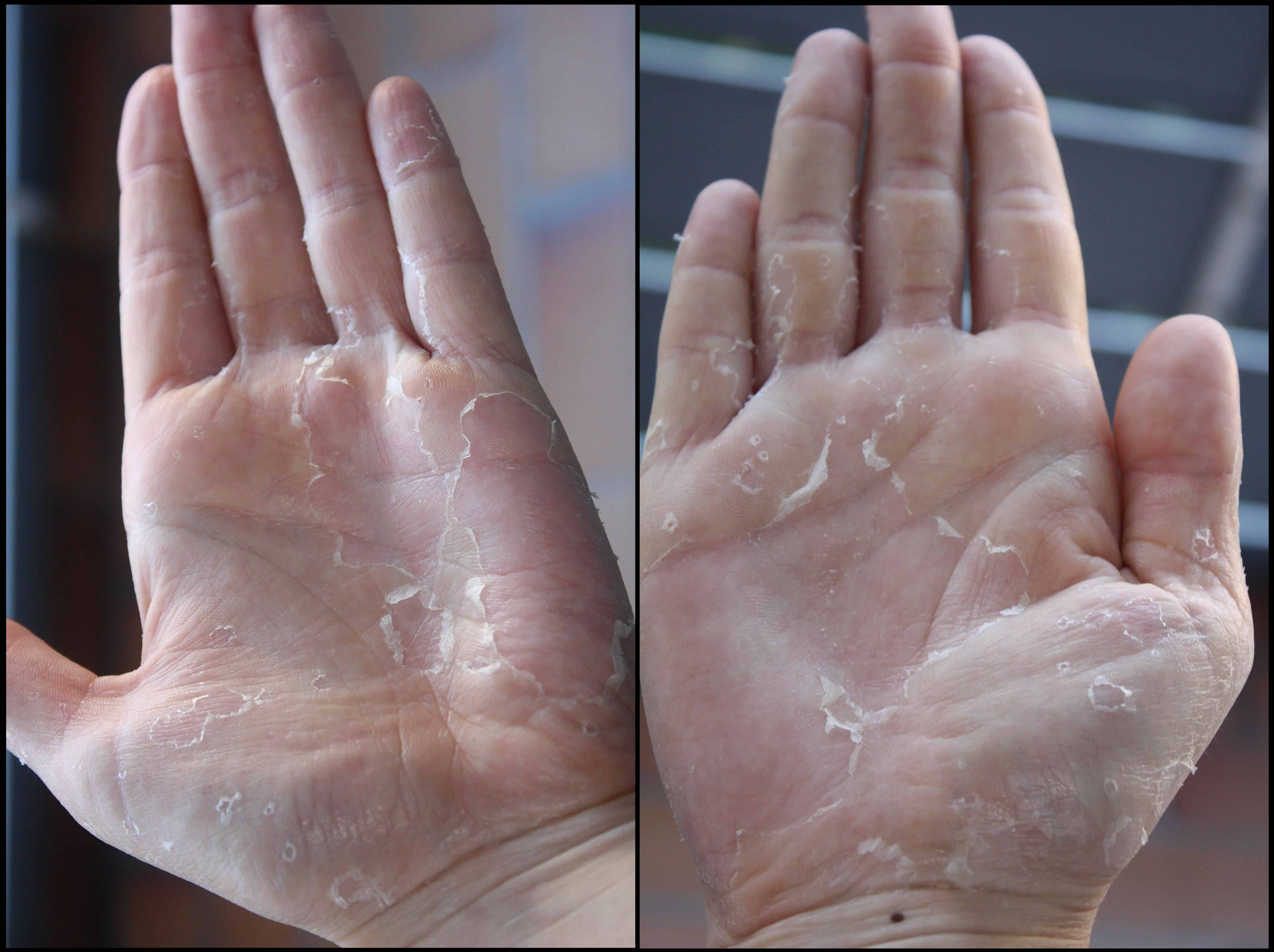 Symptoms of skin peeling