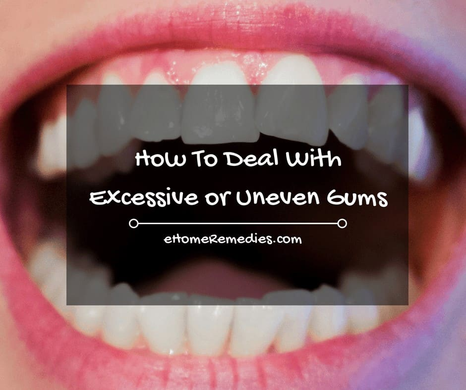 How To Deal With Excessive or Uneven Gums