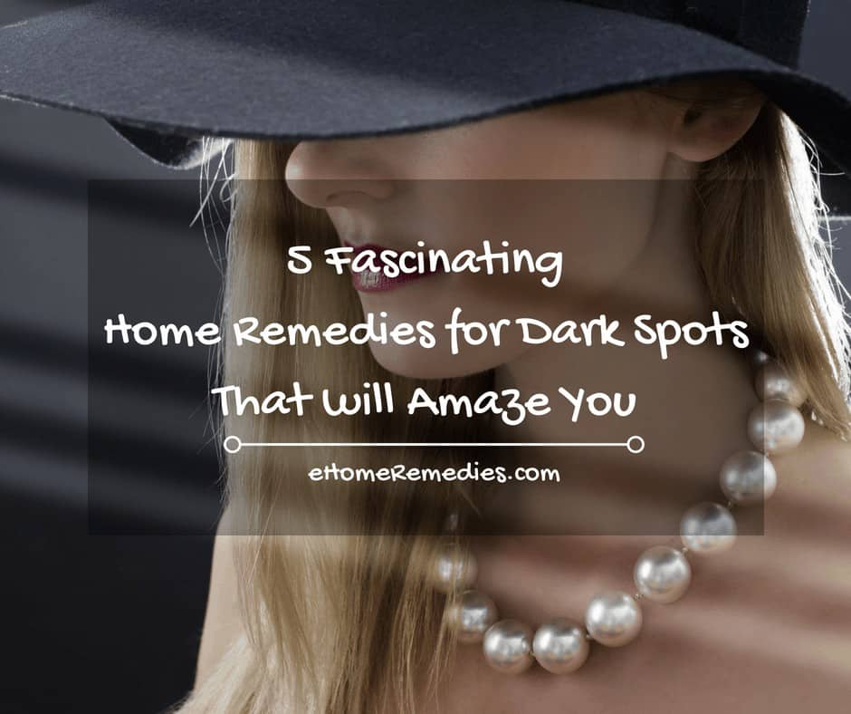 5 Fascinating Home Remedies for Dark Spots That will Amaze You