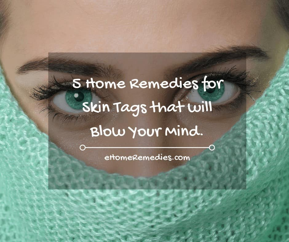 5 Home remedies for Skin Tags that will Blow Your Mind