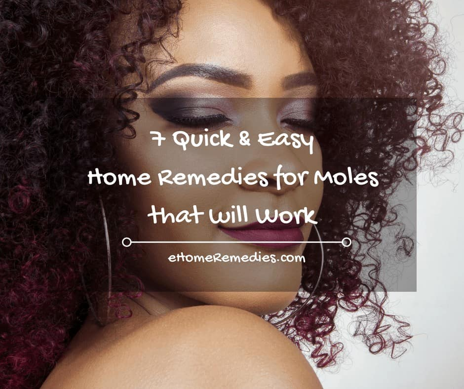 7 Quick & Easy Home Remedies for Moles that will Work
