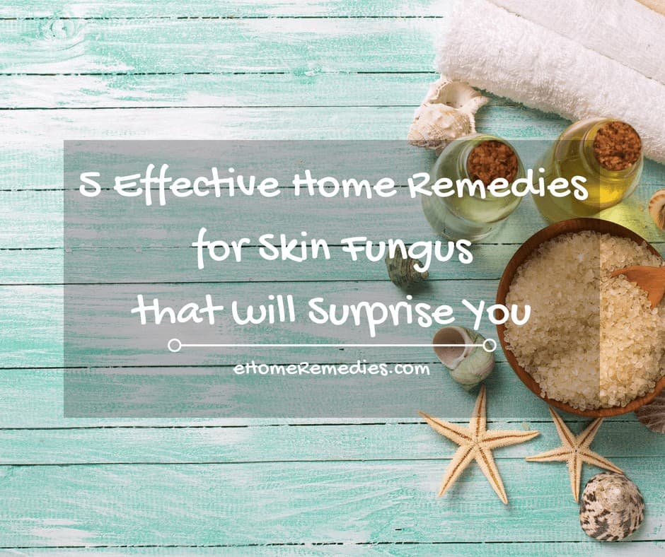 5 Effective Home Remedies for Skin Fungus that will Surprise You
