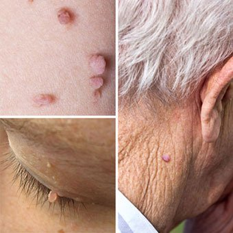 picture of skin tag