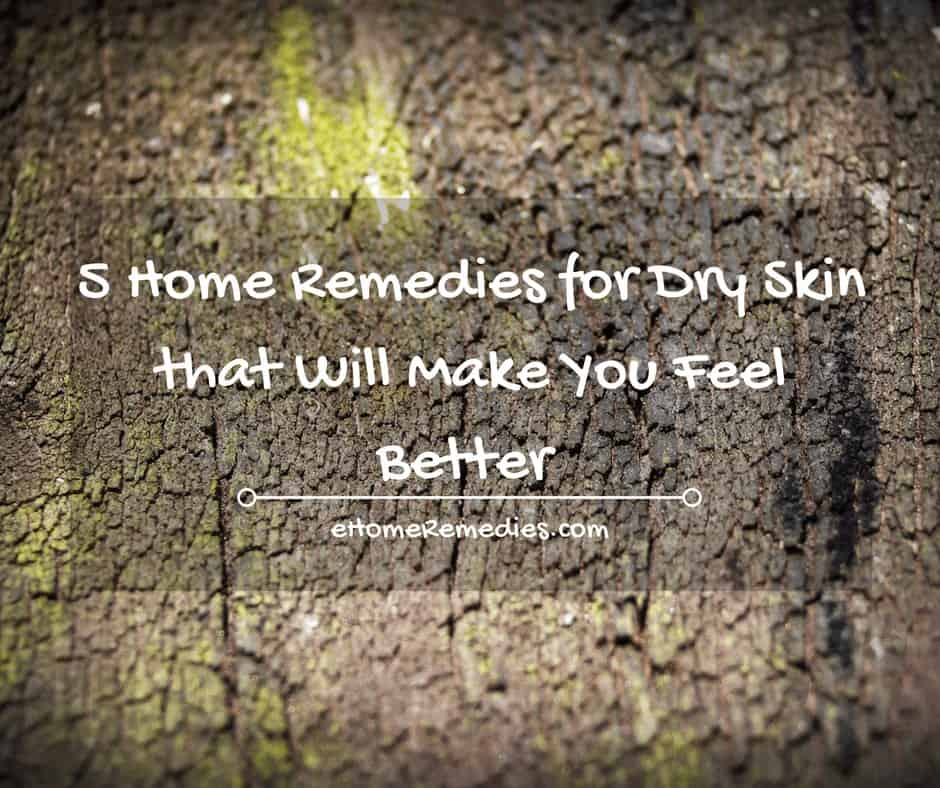 5 Home Remedies for Dry Skin that Will Make You Feel Better
