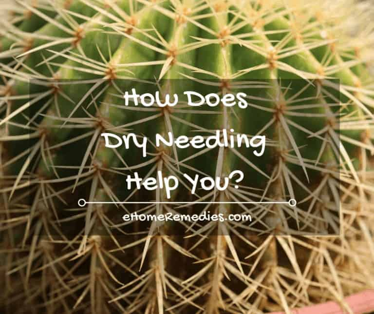 How Does Dry Needling Help You