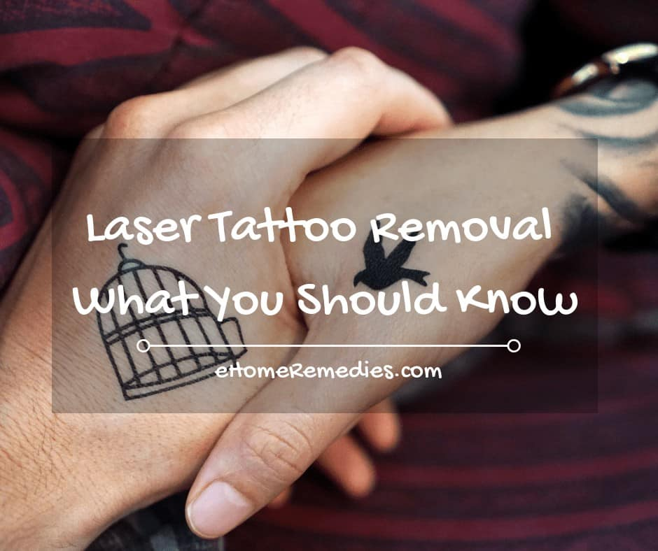 Laser Tattoo Removal – What You Should Know