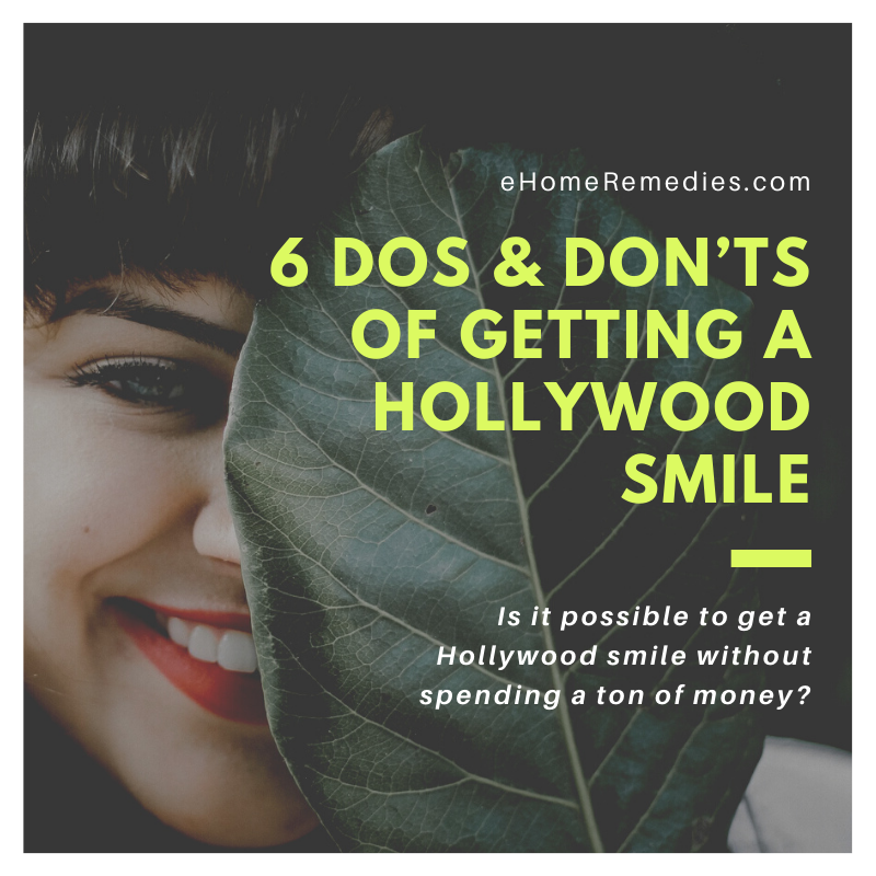 Getting a Hollywood Smile